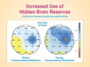 P15-Incr-Use-Brain-Reserv